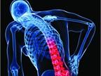 Backing off Back Pain