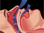 FMCSA Medical Board to Review Comments on Sleep Apnea Pre-Rule